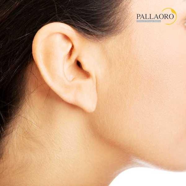otoplastica orecchie a sventola auricoplastica