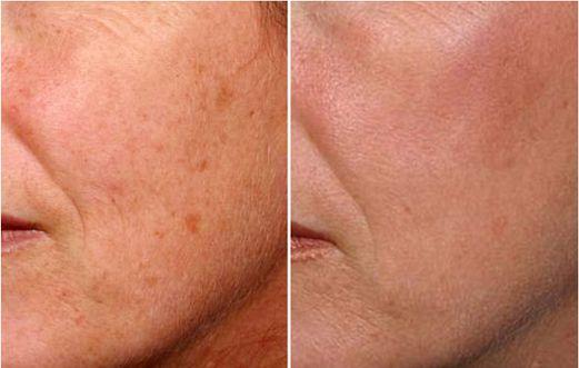 Foto prima dopo peeling laser per macchie viso