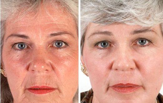 Foto prima dopo peeling laser rughe del viso
