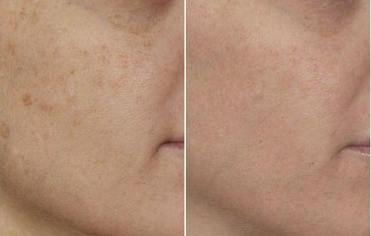 Foto prima dopo peeling laser per macchie senili viso