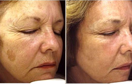 Foto prima dopo peeling laser per macchie e rughe al viso