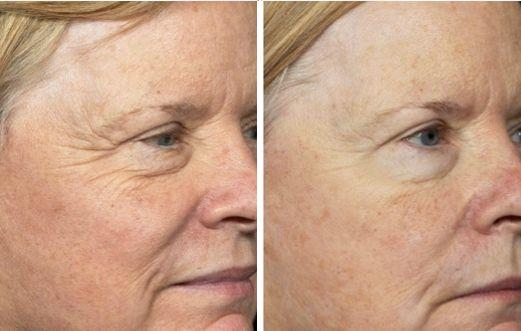 Foto prima dopo peeling laser per rughe viso