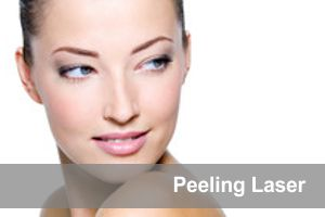 Peeling laser