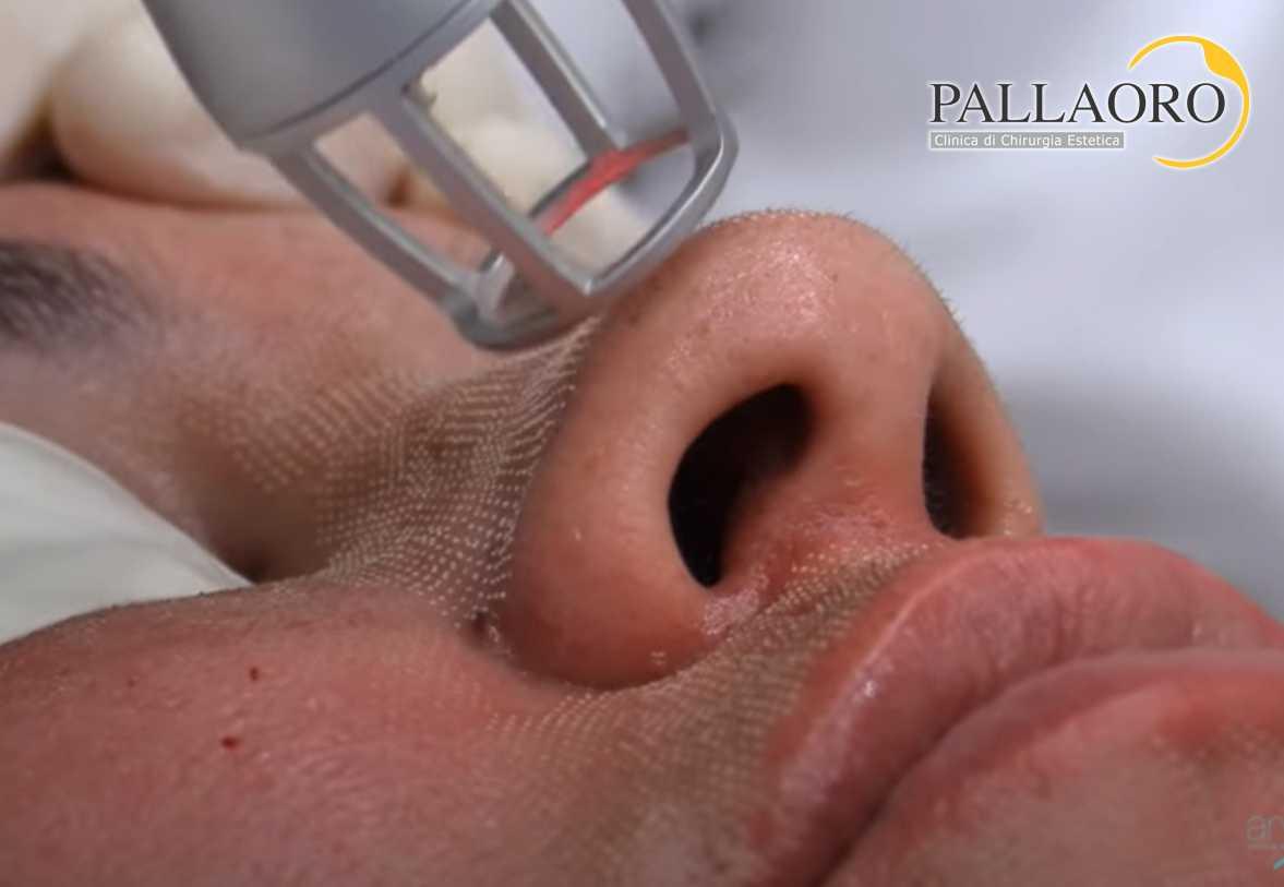 peeling laser frazionato trattamento 3