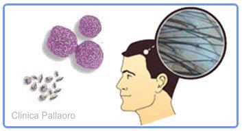 Piastrine e fattori di crescita del PRP per i capelli