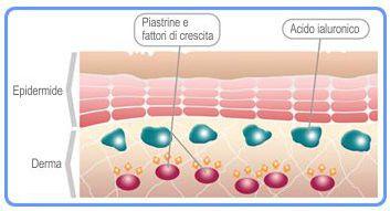 Piastrine e fattori di crescita del PRP