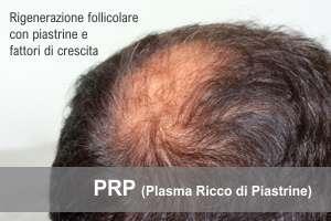 prp capelli