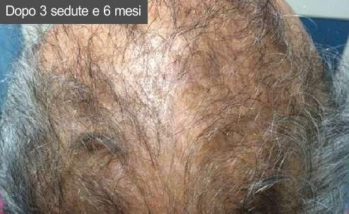 Prp capelli Dopo sei mesi dalla fine delle sedute