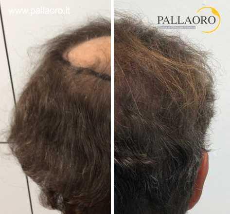 quanto costa il trapianto capelli chierica