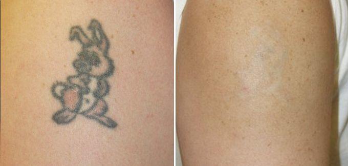 rimozione tatuaggio laser 003