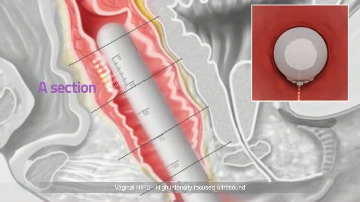 Ringiovanimento vaginale HIFU