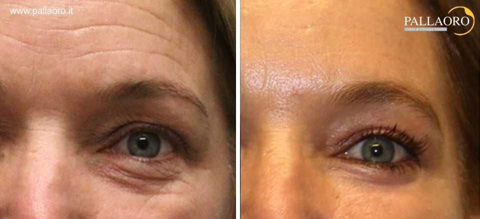 ringiovanimento viso con filler botulino