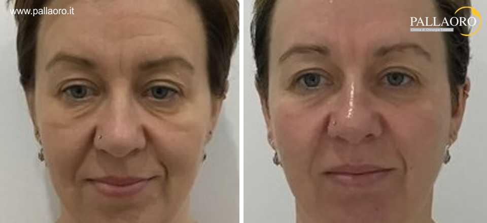 ringiovanimento viso hifu e botulino
