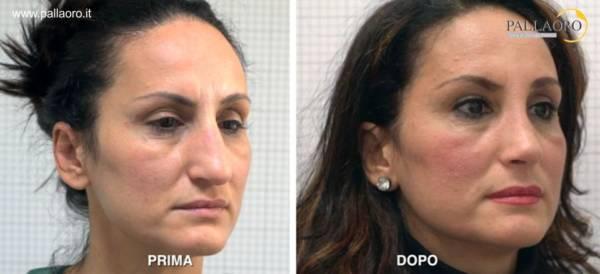 rinoplastica firenze: Rifare il naso in sicurezza