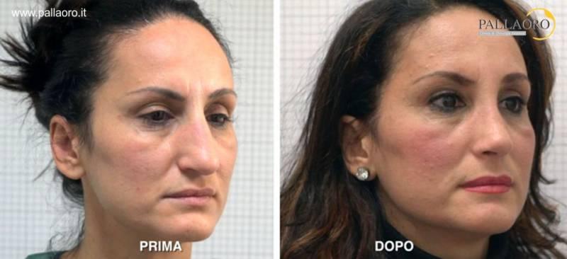 Chirurgia estetica Firenze > rinoplastica esempio 04