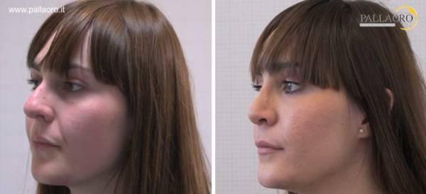 Rinoplastica naso con gibbo donna sinistra