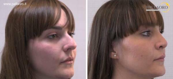 Rinoplastica naso con gibbo donna dx