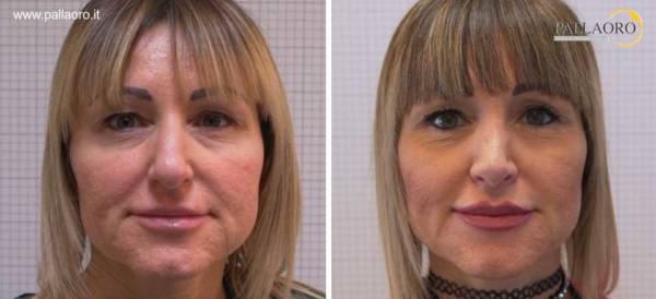 Rinoplastica foto prima dopo: Naso grande e marcatamente aquilino #12 frontale