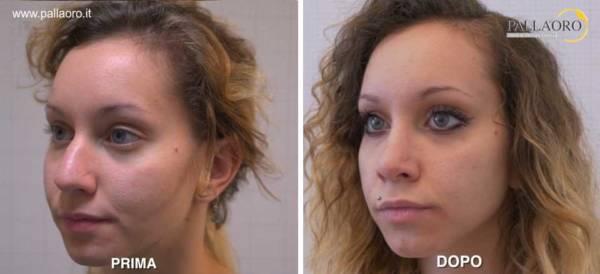 Rinoplastica foto prima dopo: Naso aquilino donna #13 tre quarti