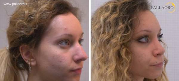 Rinoplastica foto prima dopo: Naso aquilino donna #13 destra
