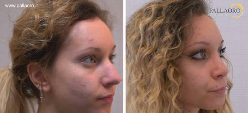 Chirurgia estetica naso prezzi e preventivi sono personalizzati