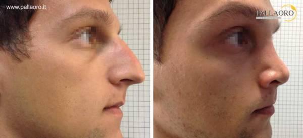 Rinoplastica foto prima dopo: Naso aquilino uomo #14 destra