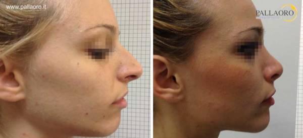 Rinoplastica foto prima dopo: Naso lungo donna #15 destra