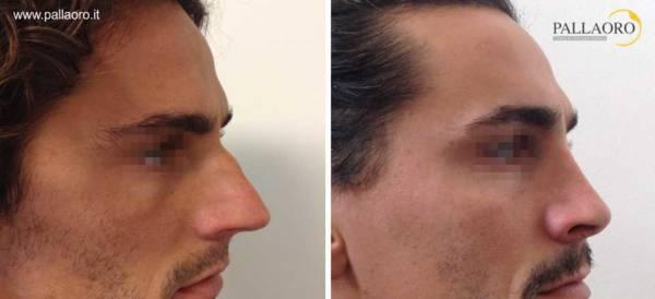 Rinoplastica foto prima dopo: Naso lungo uomo #16 destra