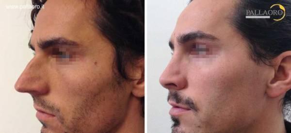 Rinoplastica foto prima dopo: Naso lungo uomo #16 sinistra