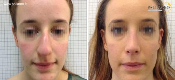 Rinoplastica foto prima dopo: Naso con gibbo donna #17 fronte
