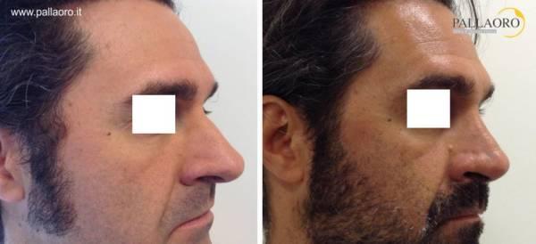 Rinoplastica uomo - Naso prominente