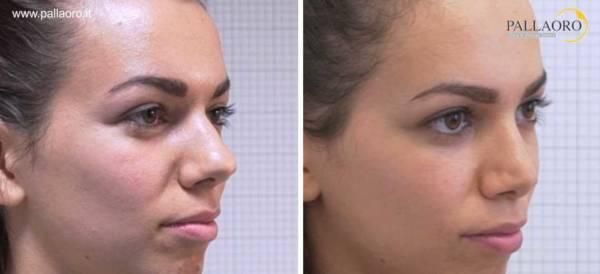 Rinoplastica foto prima dopo naso a patata e dorso 2.1-3