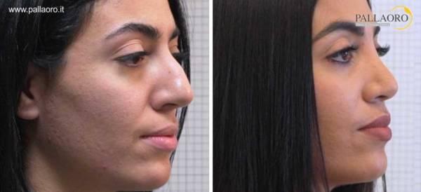 Rinoplastica foto prima dopo naso aquilino grande 2.2-1