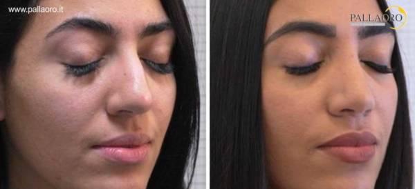 Rinoplastica foto prima dopo naso aquilino grande 2.2-2
