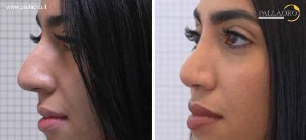 Rinoplastica foto prima dopo naso aquilino grande 2.2-3