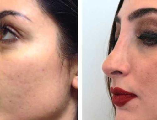 La rinoplastica di Francesca: Correzione del naso aquilino