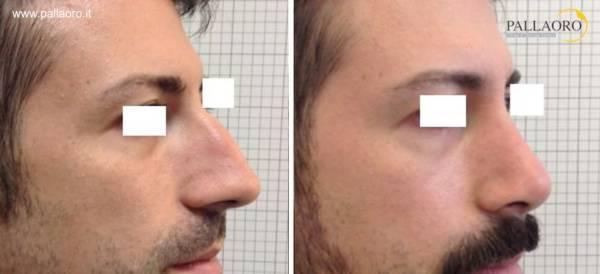 Rinoplastica uomo - Naso lungocon gibbo