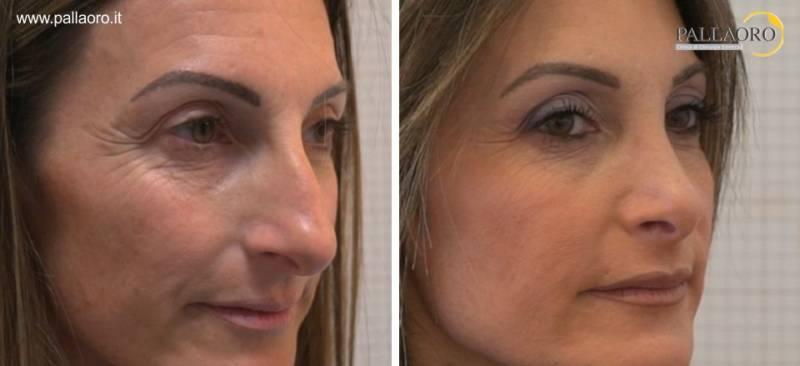 rinoplastica chirurgia estetica bologna