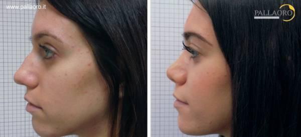 Rinoplastica foto: Modellamento del dorso del naso 02