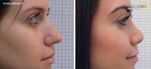Rinoplastica foto: Modellamento del dorso del naso 01