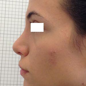 rinoplastica gibbo dorso naso sinistra dopo