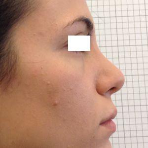 rinoplastica gibbo dorso naso destra dopo