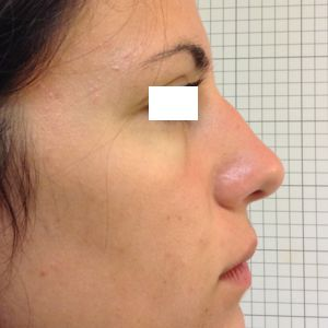 rinoplastica gibbo dorso naso destra prima
