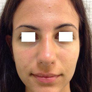 rinoplastica gibbo dorso naso prima frontale