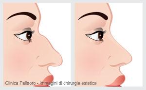 rinoplastica - chirurgia estetica naso