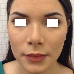 rinoplastica naso a patata donna foto dopo