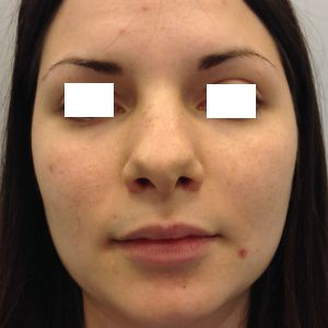 rinoplastica naso a patata donna foto prima