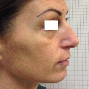rinoplastica naso aquilino donna prima