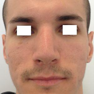 rinoplastica naso grande uomo dopo frontale