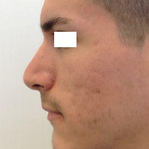 rinoplastica naso grande uomo dopo laterale